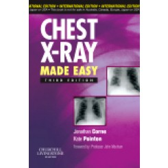 Chest X-Ray Made Easy, International Edition, 3rd Edition By Corne, Pointon, Corne & Pointon